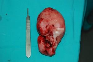 Épuli  fibromatoso